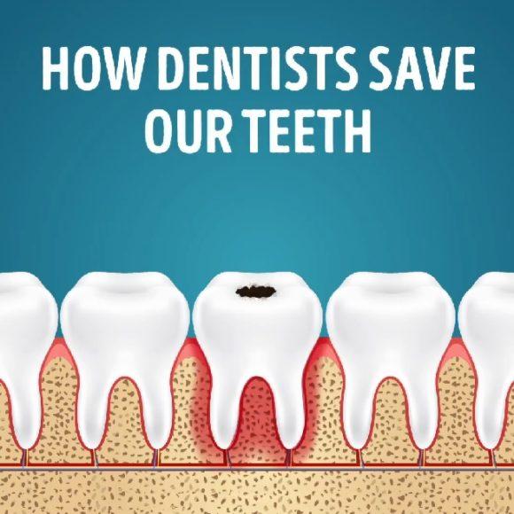 Kako stomatolozi čuvaju naše zube?